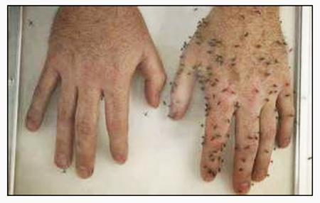 Bug-hands